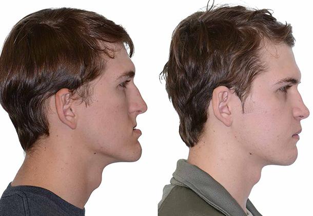 جراحی بازسازی صورت