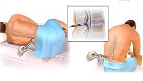 پیوند مغز استخوان در بیماران تالاسمی