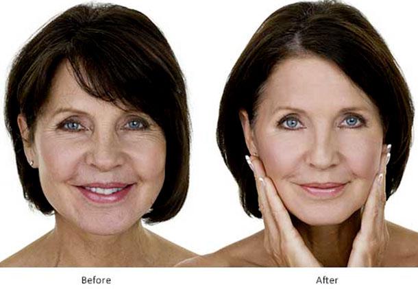 بهبودی بعد از لیفت صورت چقدر طول میکشد؟