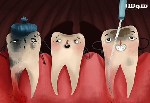 درمان ريشه دندان : همه چیز درباره درمان و ترمیم ریشه دندان