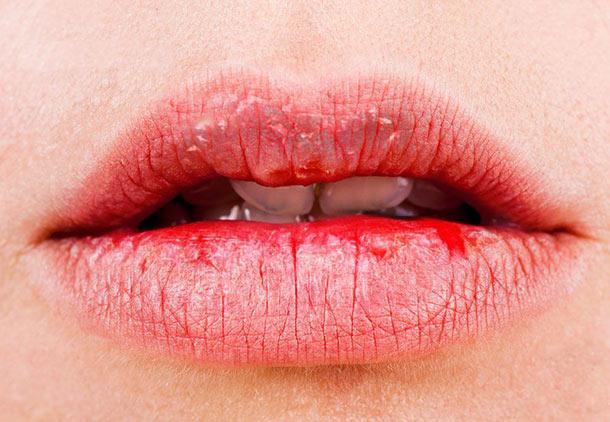 خشکی لب : مکملها و داروها علت خشکی لب و دهان