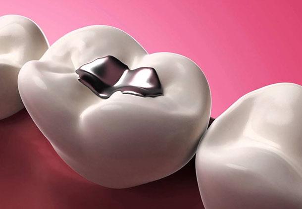 مرحله سوم درمان ریشه دندان