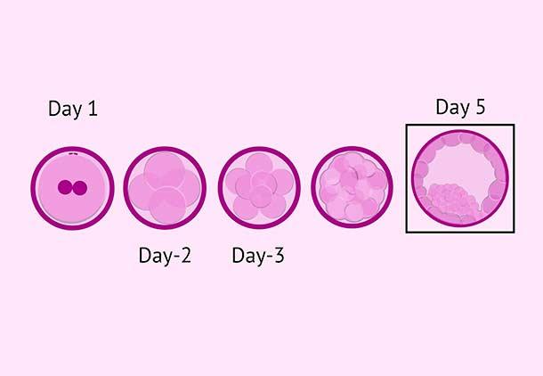 لقاح خارج رحمی (IVF) : مرحله چهارم : کشت جنین