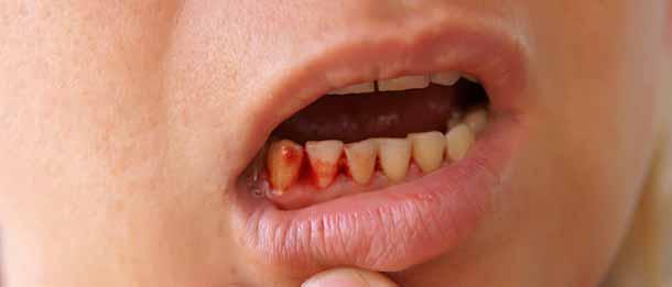 بوی بد دهان بعد از کشیدن دندان : خونریزی علت بوی بد دهان بعد از کشیدن دندان