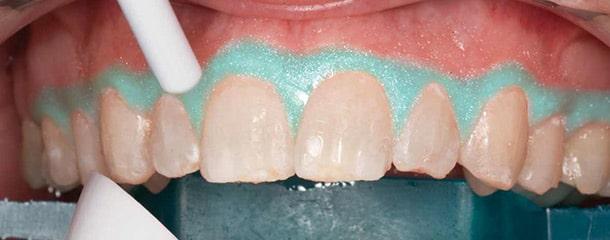 عوارض بلیچینگ دندان : عوارض بلیچینگ دندان