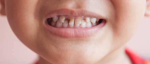 پوسیدگی دندان کودکان : نشانه های پوسیدگی دندان کودکان