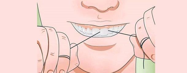 درمان تورم و قرمزی لثه با روش صحیح نخ دندان کشیدن