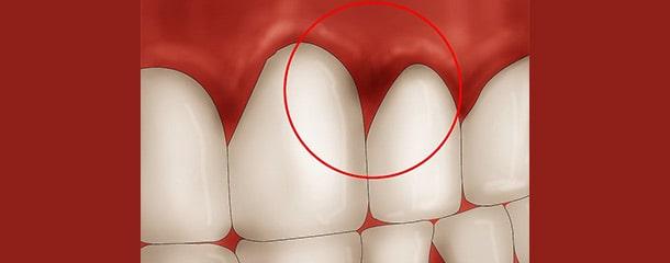 علت قرمزی لثه در اطراف دندان