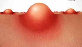 درمان جوش دستگاه تناسلی زنان