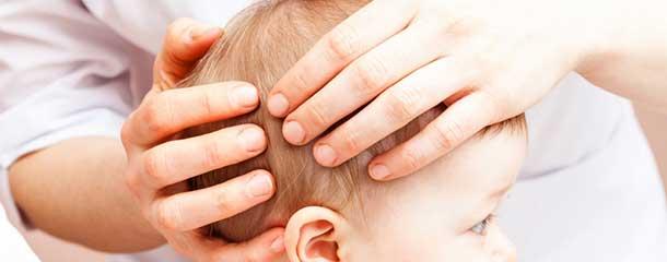 دلیل خارش سر نوزاد و کودک : دلیل خارش پشت سر نوزاد