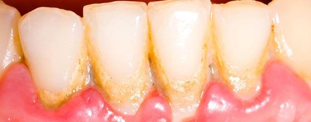 لکه های قهوه ای روی دندان : جرم دندان علت قهوه ای شدن دندان