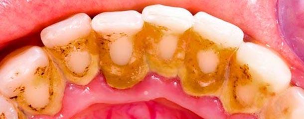 از بین بردن لکه های سیاه روی دندان