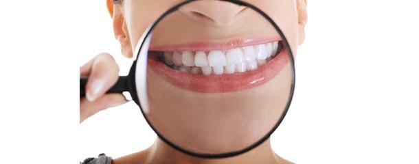 درمان لکه و خال سیاه دندان با مخلوط جوش شیرین و آب