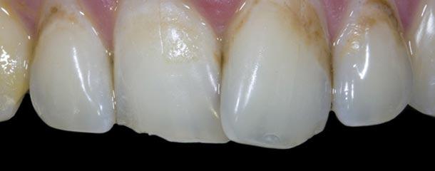 درمان لکه های قهوه ای دندان (سفید کردن لكه قهوه ای روی دندان)