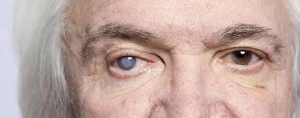انحراف چشم : علت بیماریانحراف چشم