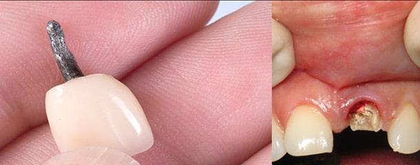 بوی بد دندان روکش شده : علت بوی بد دندان روکش شده چیست ؟