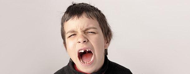 عصب کشی دندان شیری : نشانههای نیاز به عصب کشی دندان شیری در کودکان