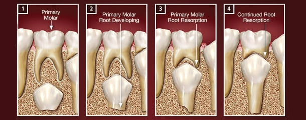 عصب کشی دندان شیری : آیا دندان شیری ریشه دارد؟
