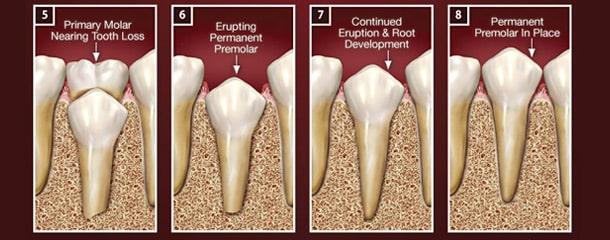 عصب کشی دندان شیری : ریشه دندان شیری