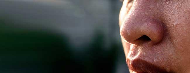 تعریق زیاد سر و صورت : تعریق سر و صورت بر چند نوع است