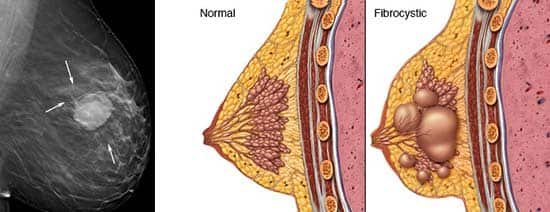 ماساژ سینه : مزایای درمانی ماساژ سینه