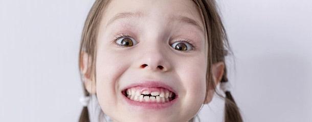 علت کج درآمدن دندان دائمی : زمان رویش دندانها علت کج درآمدن دندان دائمی