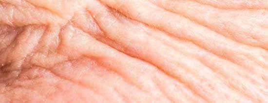 تزریق چربی به واژن : تزریق چربی به واژن مناسب چه کسانی است؟